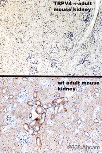 Immunohistochemistry (Formalin/PFA-fixed paraffin-embedded sections) - TRPV4 antibody (ab39260)