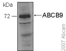Western blot - ABCB9 antibody (ab39273)