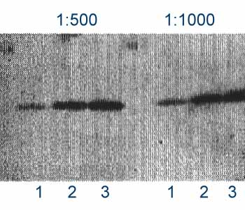 Western blot - beta Amyloid 1-42 antibody (ab39377)