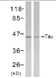 Western blot - Tau antibody (ab39526)
