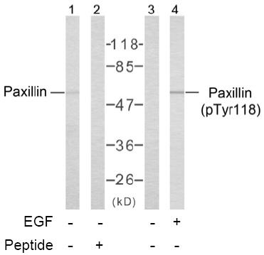 Western blot - Paxillin antibody (ab39537)