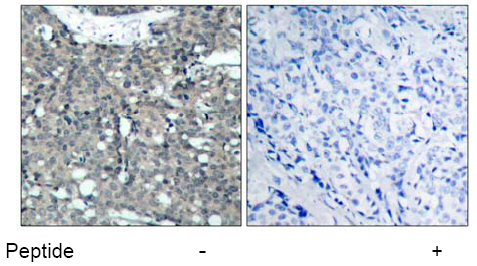Immunohistochemistry (Paraffin-embedded sections) - Paxillin antibody (ab39537)