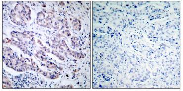 Immunohistochemistry (Paraffin-embedded sections) - TYK2 antibody (ab39550)