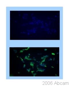 Immunocytochemistry/ Immunofluorescence - 5HT3B receptor antibody (ab39629)