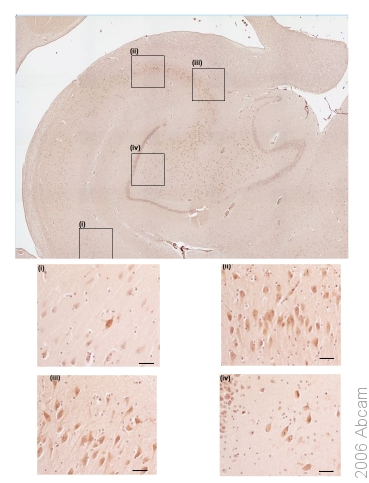 Immunohistochemistry (Formalin/PFA-fixed paraffin-embedded sections) - 5HT3B receptor antibody (ab39629)