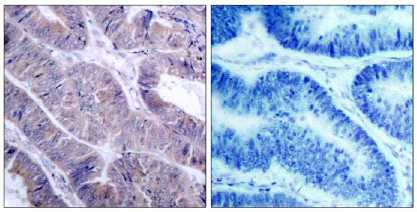 Immunohistochemistry (Paraffin-embedded sections) - AMPK alpha 1 + AMPK alpha 2 antibody (ab39644)