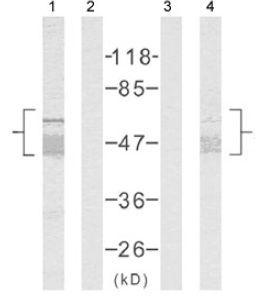 Western blot - Tau antibody (ab39679)