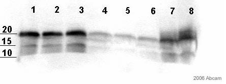 Western blot - S100 antibody [4C4.9] - Astrocyte Marker (ab4066)