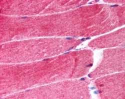 Immunohistochemistry (Formalin/PFA-fixed paraffin-embedded sections) - MURF1 antibody (ab4125)