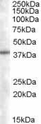 Western blot - SNX16 antibody (ab4151)