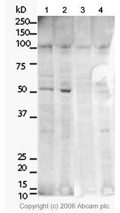 Western blot - TRF2 antibody (ab4182)