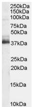 Western blot - RNF88 antibody (ab4389)