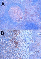 Immunohistochemistry (Formalin/PFA-fixed paraffin-embedded sections) - TRIM5 alpha antibody (ab4389)
