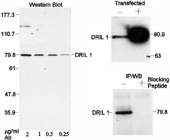 Western blot - DRIL1 antibody (ab4445)