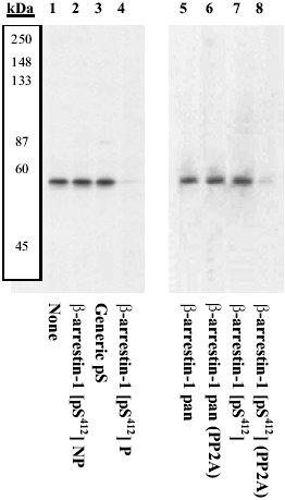 Western blot - beta Arrestin 1 (phospho S412) antibody (ab4472)