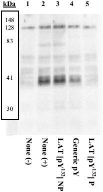 Western blot - LAT (phospho Y132) antibody (ab4476)