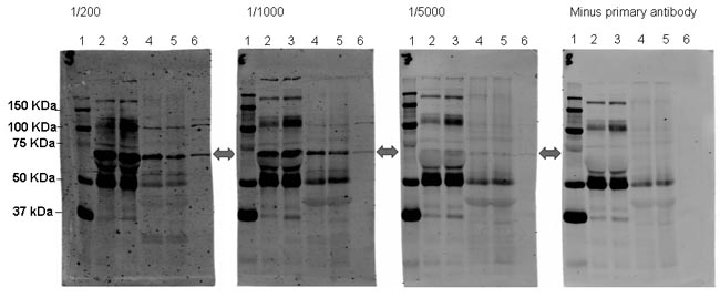 Western blot - SORBS1 antibody (ab4551)