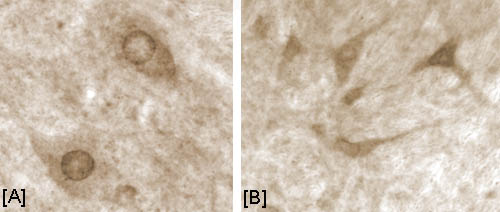 Immunohistochemistry (PFA perfusion fixed frozen sections) - AKT1 (phospho T308) antibody (ab4796)
