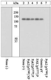Western blot - PYK2 (phospho Y580) antibody (ab4806)