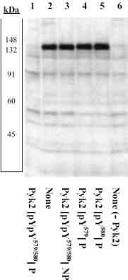 Western blot - PYK2 (phospho Y579 + Y580) antibody (ab4807)