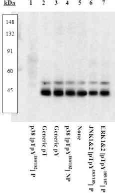Western blot - p38 (phospho Y182 + T180) antibody (ab4822)