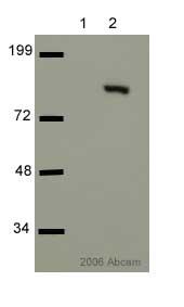 Western blot - cleaved PARP antibody (ab4830)