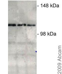 Western blot - USP15 antibody (ab4850)