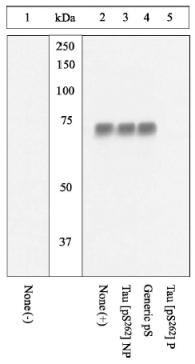 Western blot - Tau (phospho S262) antibody (ab4856)