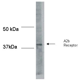 Western blot - Adenosine A2b Receptor antibody (ab40002)