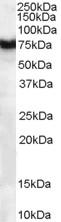 Western blot - Frizzled 8 antibody (ab40012)