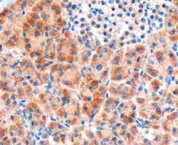 Immunohistochemistry (Formalin/PFA-fixed paraffin-embedded sections) - Frizzled 8 antibody (ab40012)
