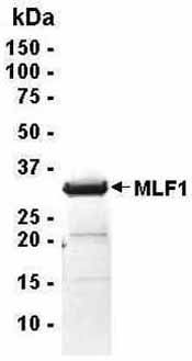SDS-PAGE - Myeloid leukemia factor 1 protein (ab40569)