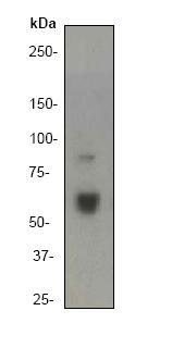 Western blot - Anti-TRAF6 antibody [EP592Y] (ab40675)