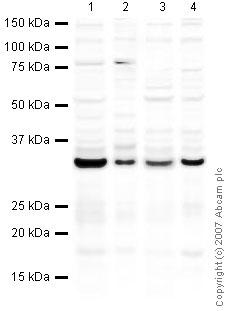 Western blot - Emerin antibody (ab40688)