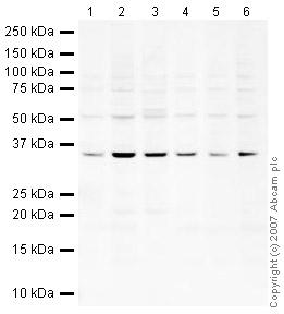 Western blot - U1A antibody (ab40689)