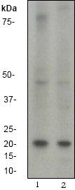 Western blot - b-Myc antibody [EP643Y] (ab40798)