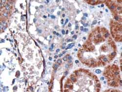 Immunohistochemistry (Formalin/PFA-fixed paraffin-embedded sections) - DARC antibody (ab40821)