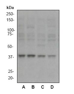 Western blot - MEK3 antibody [EP555Y] (ab40836)