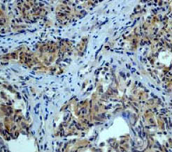 Immunohistochemistry (Formalin/PFA-fixed paraffin-embedded sections) - Smad3 antibody [EP568Y] (ab40854)