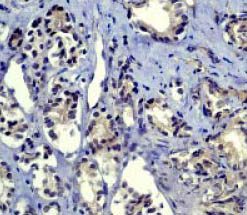 Immunohistochemistry (Paraffin-embedded sections) - Smad2 antibody [EP784Y] (ab40855)
