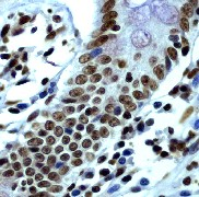 Immunohistochemistry (Paraffin-embedded sections) - Histone H2B (acetyl K12) antibody [EP858Y] (ab40883)