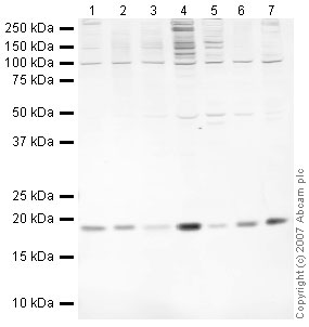 Western blot - JDP2 antibody (ab40916)