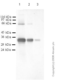 Western blot - Kallikrein 3 antibody - Catalytic domain (ab40949)