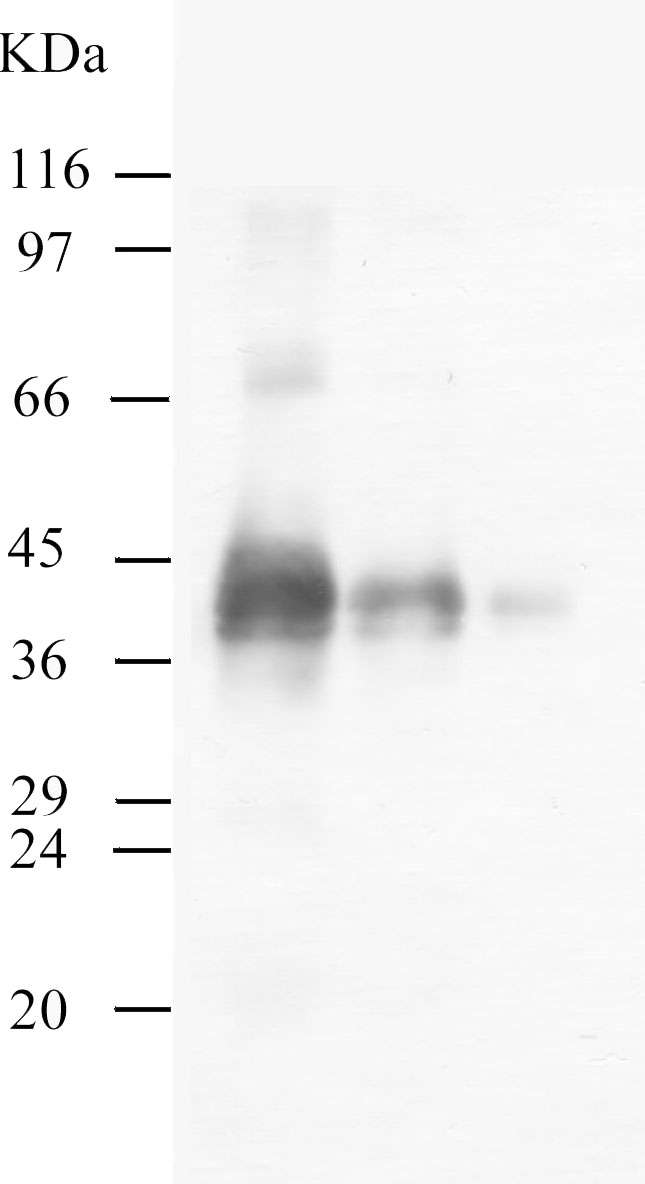 Western blot - Kallikrein 11 antibody - Catalytic domain (ab40957)