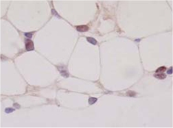Immunohistochemistry (Formalin/PFA-fixed paraffin-embedded sections) - PPAR gamma 1+2  antibody [A3409A] - ChIP Grade (ab41928)