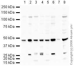 Western blot - Anti-TDP43 antibody (ab41972)