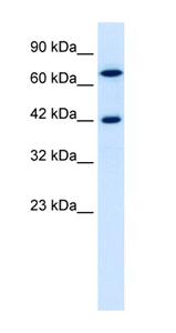 Western blot - Anti-TOX2 antibody (ab42430)