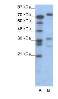 Western blot - CREB3 antibody (ab42454)