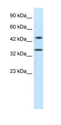 Western blot - PNMA1 antibody (ab42467)