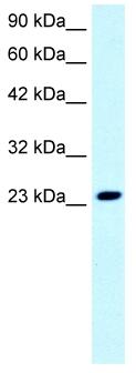 Western blot - C1orf149 antibody (ab42472)